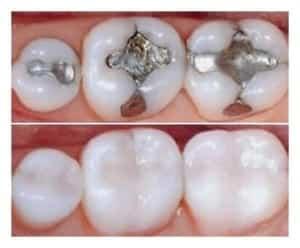 Amalgama - Swissdent Clinica dental en Ica