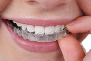 Brackets - Clinica Dental en Ica