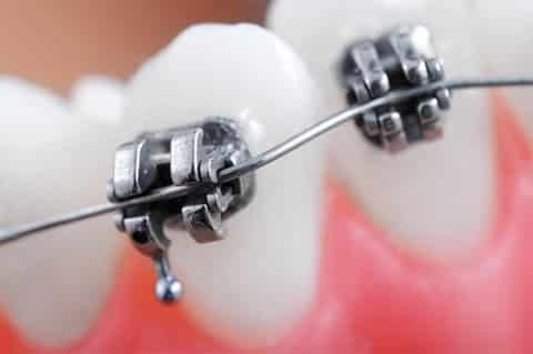 Brackets - dentista Ica