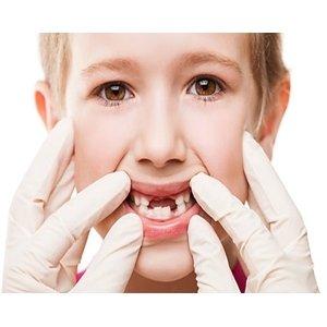 ¿Sabes que algunos hábitos causan dientes torcidos en los niños?