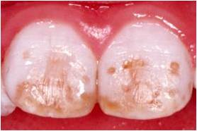 Fluor 1- Dentista ica