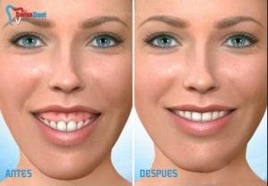 Gengivoplastia - dentista Ica peru