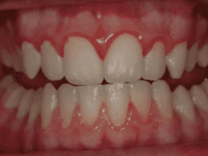 La enfermedad de las encías Odontologo Ica