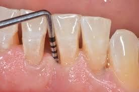 Sonda - Consultorio dental Ica