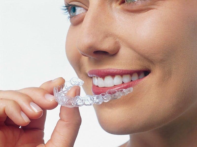 Invisalign-brackets invisibles ortodoncia ica dentista