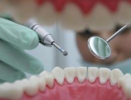 centro odontologico ica - dientes